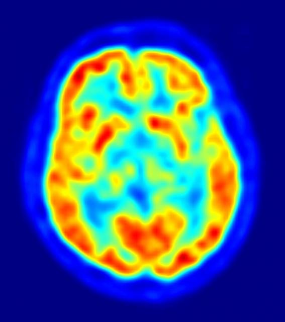 PET-image of human brain