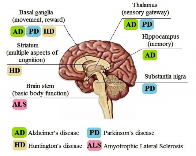 Neurodegenerative diseases in the brain